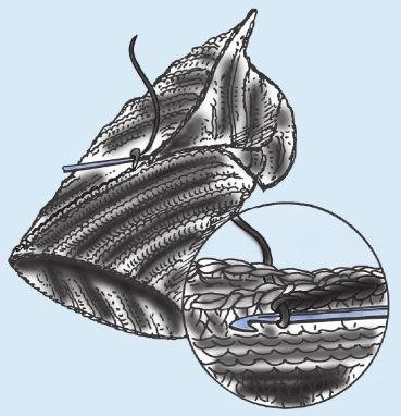 Шапка колпак спицами выполнение шва